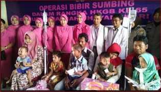 Polda Riau Gencarkan Aksi Sosial, HKGB Gelar Operasi Bibir Sumbing Gratis